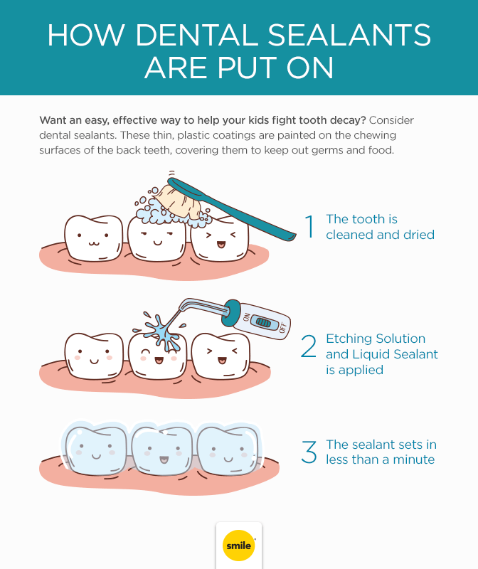 How Dental Sealants Are Applied To Your Teeth